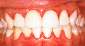 tandkød gør ondt